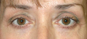 Eye Lift - Patient 13 - After