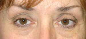 Eye Lift - Patient 13 - Before