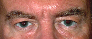 Eye Lift - Patient 18 - Before