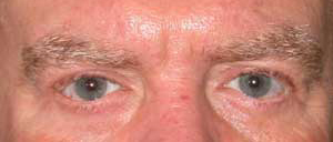 Eye Lift - Patient 18 - After