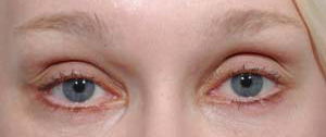 Eye Lift - Patient 5 - After