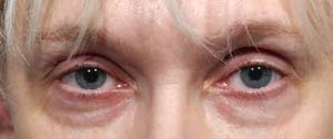 Eye Lift - Patient 5 - Before