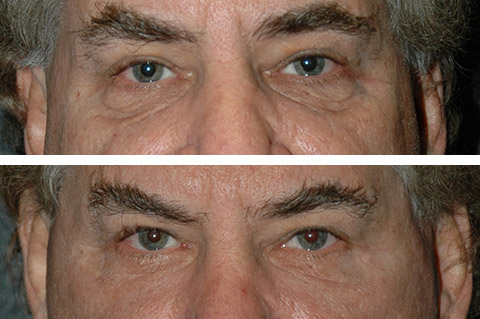 Lower Eyelid Surgery for Men
