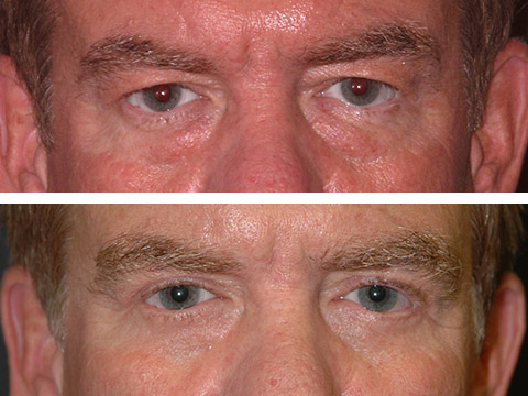 Male Blepharoplasty Photo