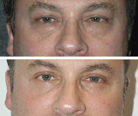 Male Eyelid Surgery Before and After Patient Photos