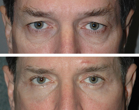 Male Eyelid Surgery Patient Photos