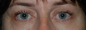 upper eyelid surgery patient pics