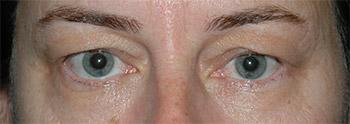 upper eyelid surgery pics