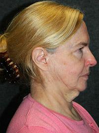Facelift - Patient 2 - Front - Before