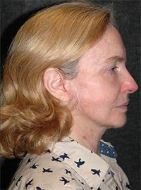 Facelift - Patient 2 - Front - After