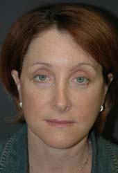 Facelift - Patient 21 - Front - After