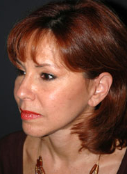 Facelift - Patient 17 - Obl Left - After