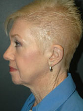 Facelift - Patient 5 - Lateral Left - Before