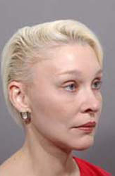 Facelift - Patient 3 - Obl Right - After