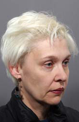 Facelift - Patient 3 - Obl Right - Before