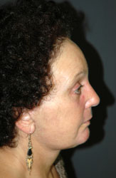 Facelift - Patient 24 - Lateral Right - After