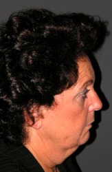 Facelift - Patient 24 - Lateral Right - Before