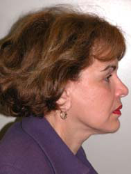 Facelift - Patient 38 - Lateral Right - After
