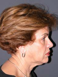 Facelift - Patient 38 - Lateral Right - Before