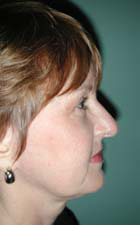 Facelift - Patient 41 - Lateral Right - After