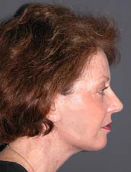 Facelift - Patient 20 - Lateral Right - After