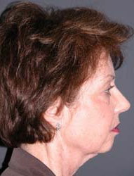 Facelift - Patient 20 - Lateral Right - Before