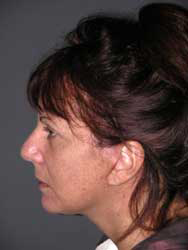Facelift - Patient 23 - Lateral Left - After