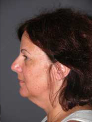 Facelift - Patient 23 - Lateral Left - Before