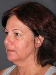 Facelift - Patient 23 - Obl Left - Before