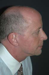 Facelift - Patient 13 - Lateral Right - After