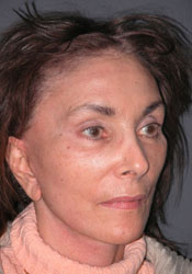 Facelift - Patient 31 - Obl Right - After