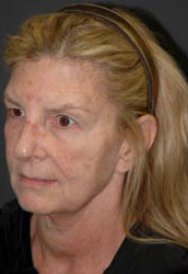 Facelift - Patient 18 - Obl Left - Before