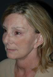 Facelift - Patient 18 - Obl Left - After