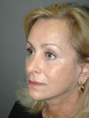 Facelift - Patient 14 - Obl Left - After