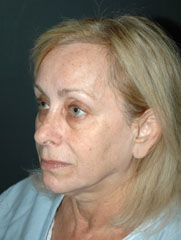 Facelift - Patient 14 - Obl Left - Before