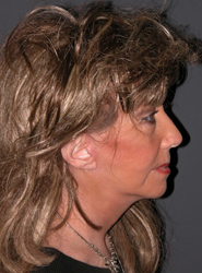 Facelift - Patient 30 - Lateral Right - After