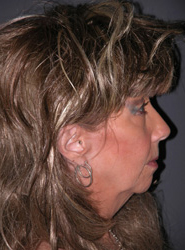 Facelift - Patient 30 - Lateral Right - Before