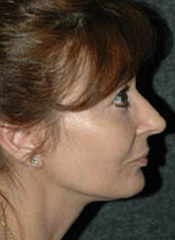 Facelift - Patient 6 - Lateral Right - After