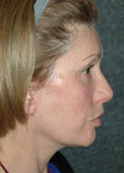 Facelift - Patient 8 - Lateral Right - After