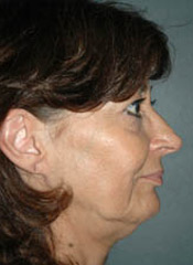 Facelift - Patient 6 - Lateral Right - Before
