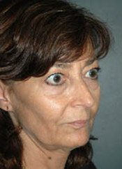Facelift - Patient 7 - Obl Right - Before