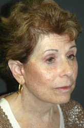 Facelift - Patient 19 - Obl Right - After