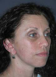Facelift - Patient 34 - Obl Right - After