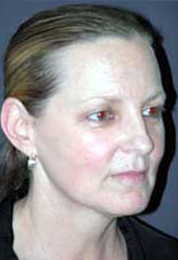 Facelift - Patient 35 - Obl Right - Before