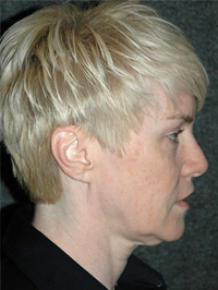 Facelift - Patient 1 - Lateral Right - Before