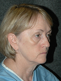 Facelift - Patient 4 - Obl Right - Before
