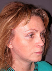 Facelift - Patient 39 - Obl Right - After