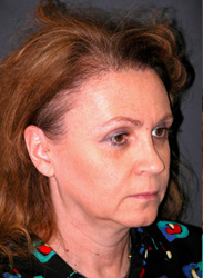 Facelift - Patient 39 - Obl Right - Before