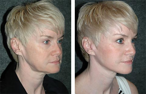 best facelift surgeon in the america photos