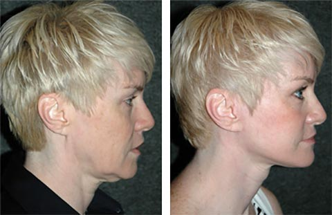 best facelift surgeon in the america